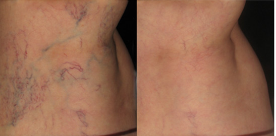 spider veins and varicose veins – what are they? why do we get them? can you treat them?