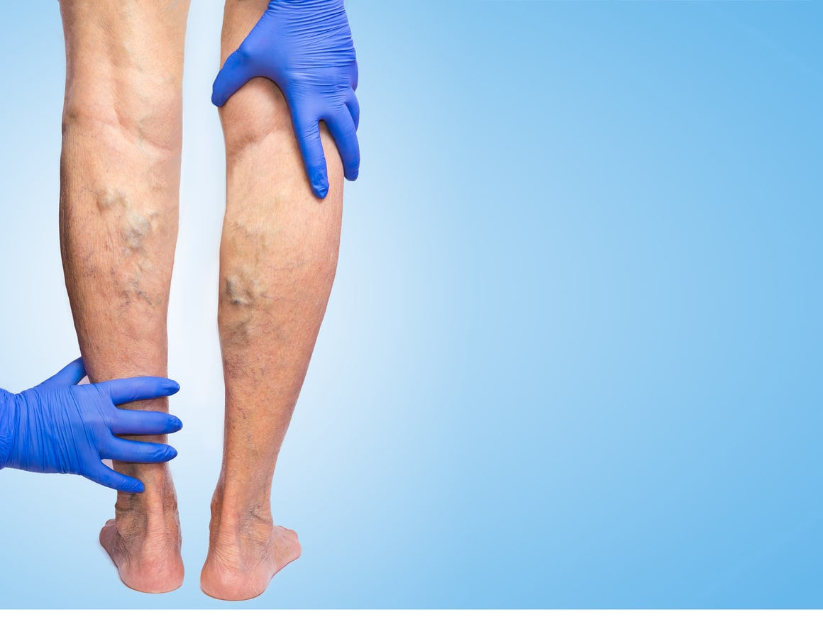 the perfect solution to get rid of unsightly spider veins