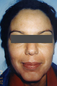 Non-Surgical Procedures - Chemical Peel - Case #2142 After