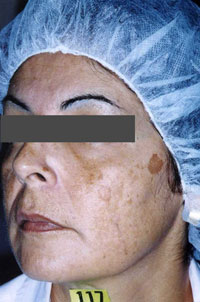Non-Surgical Procedures - Chemical Peel - Case #2148 Before