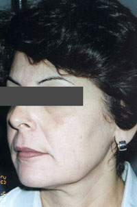 Non-Surgical Procedures - Chemical Peel - Case #2148 After