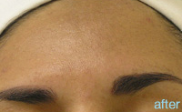 Non-Surgical Procedures - HydraFacial - Case #2151 After