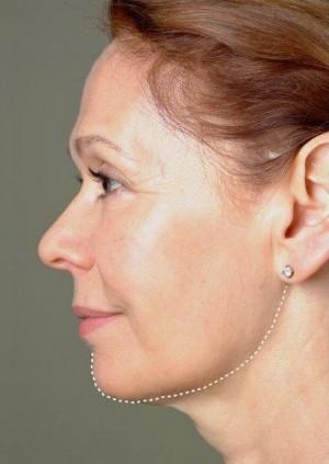 thermage skin tightening