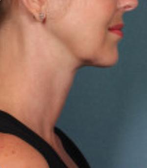 Non-Surgical Procedures - Kybella - Case #3815 After