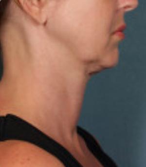Non-Surgical Procedures - Kybella - Case #3815 Before