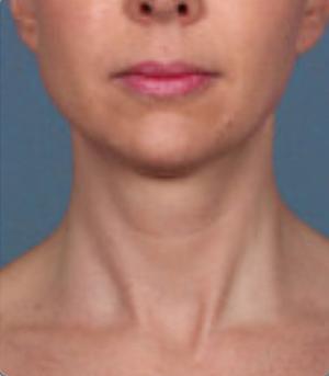 Non-Surgical Procedures - Kybella - Case #3821 Before