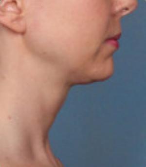 Non-Surgical Procedures - Kybella - Case #3821 After
