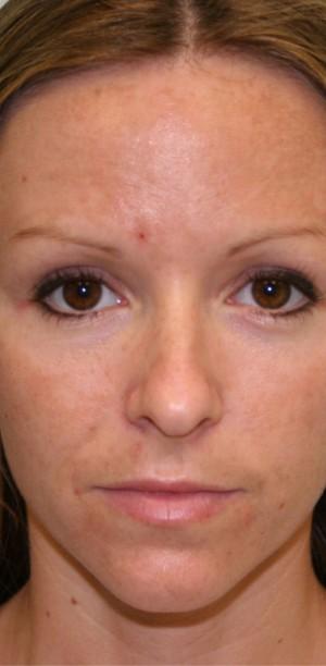 Non-Surgical Procedures - Photofacial - Case #3373 Before