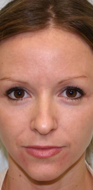 Non-Surgical Procedures - Photofacial - Case #3373 After