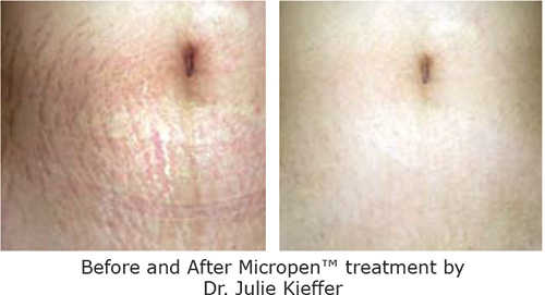 prp/micropen treatment