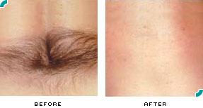 laser hair removal in culver city & marina del rey