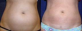 vaser liposuction in culver city
