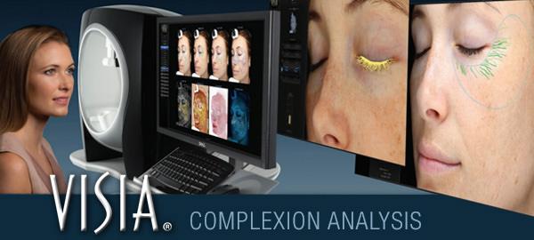 visia skin care complexion analysis