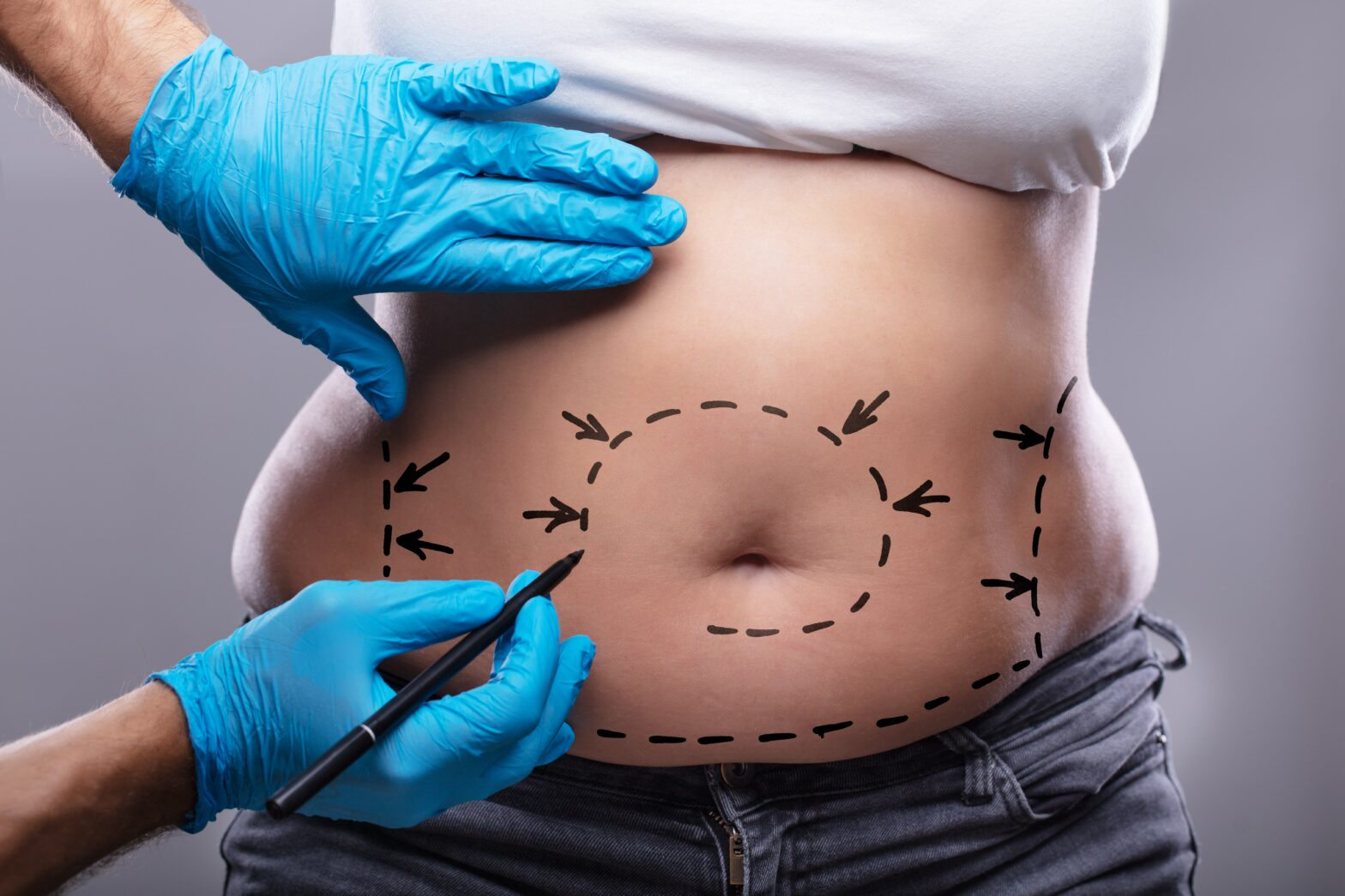 liposuction for fat reduction